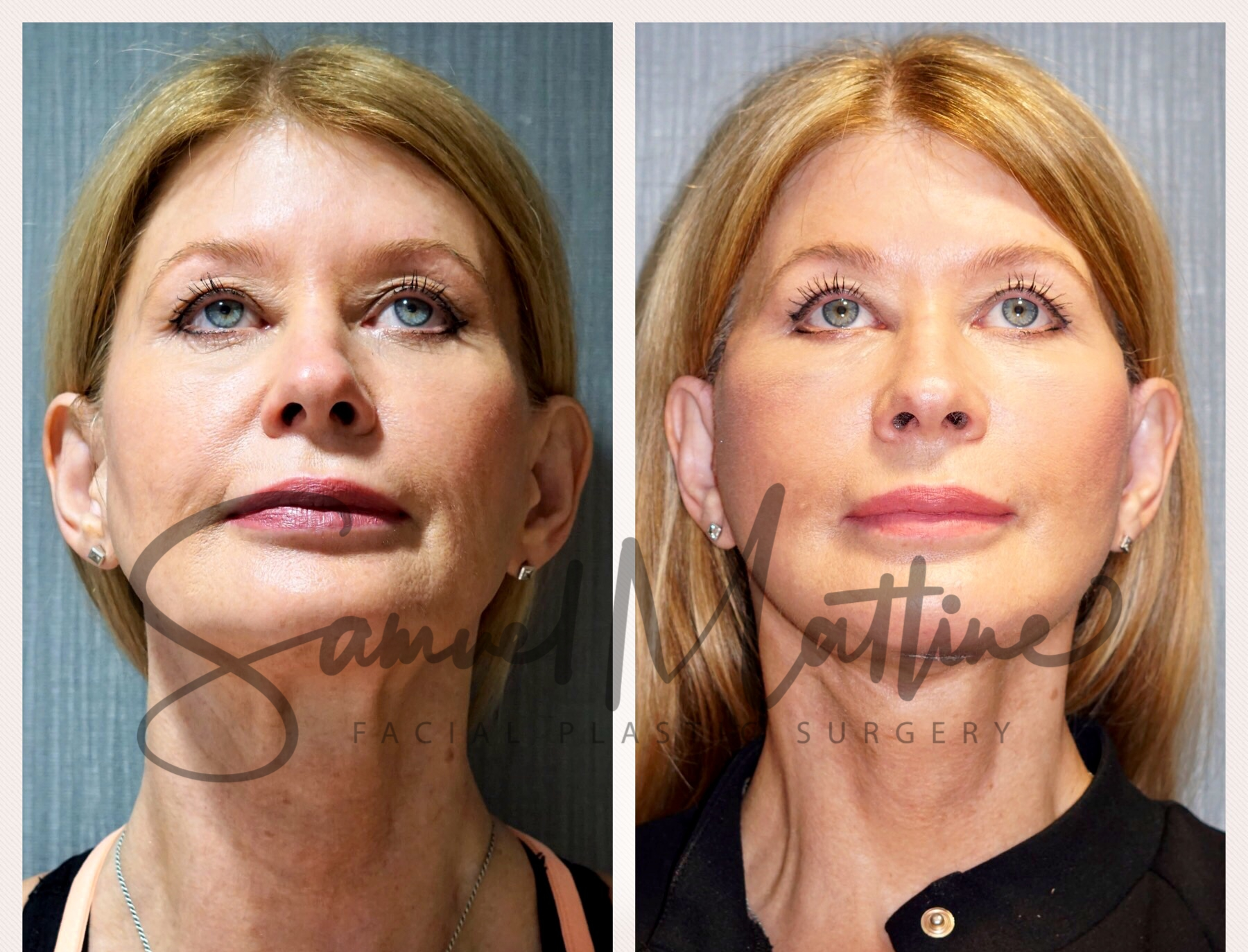 Before and After Face Lift